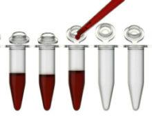 Определение нормы креатинина в крови и моче у взрослых и детей (таблица)