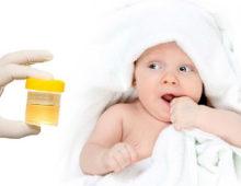 Легкий и правильный способ сбора мочи у новорожденных детей