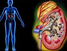 Микронефролитиаз - начальная стадия мочекаменной болезни