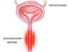 Уретрит: признаки и лечение острой и хронической формы у мужчин