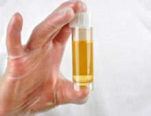 Высокий белок в моче - сигнал о плохом состоянии здоровья