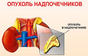 Опухоль надпочечника