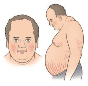 Симптомы Иценко-Кушинга