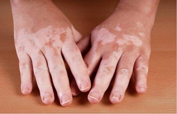 Пигментация болезни аддисона