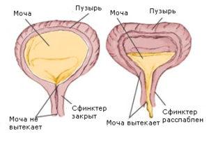 Рези в мочевом пузыре у женщин причины 21