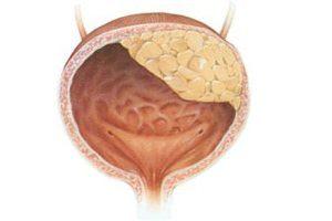 Рези в мочевом пузыре у женщин причины 19