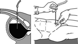 операция цистостомии