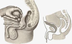 операция по удалению мочевика