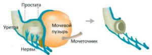 Нервосберегающее удаление мочевика