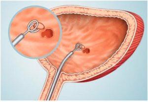 Что такое инстилляция мочевого пузыря thumbnail