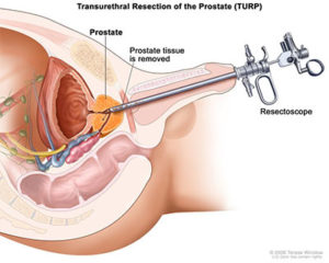 Что такое тур в урологии мочевого пузыря