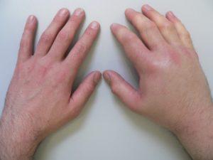 Отеки рук