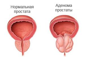 рисунок аденомы простаты