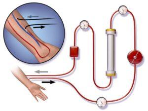Принцип гемодиализа