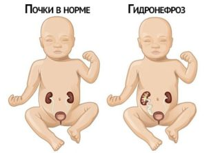 Врожденный гидронефроз