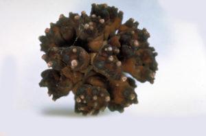 Как выглядят почечные камни