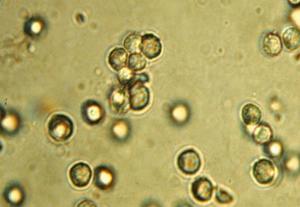 лейкоциты под микроскопом
