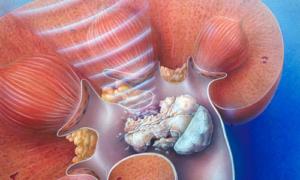 Микролиты в почках