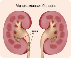 Народные средства от отеков при болезни почек thumbnail