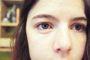 Опухли глаза