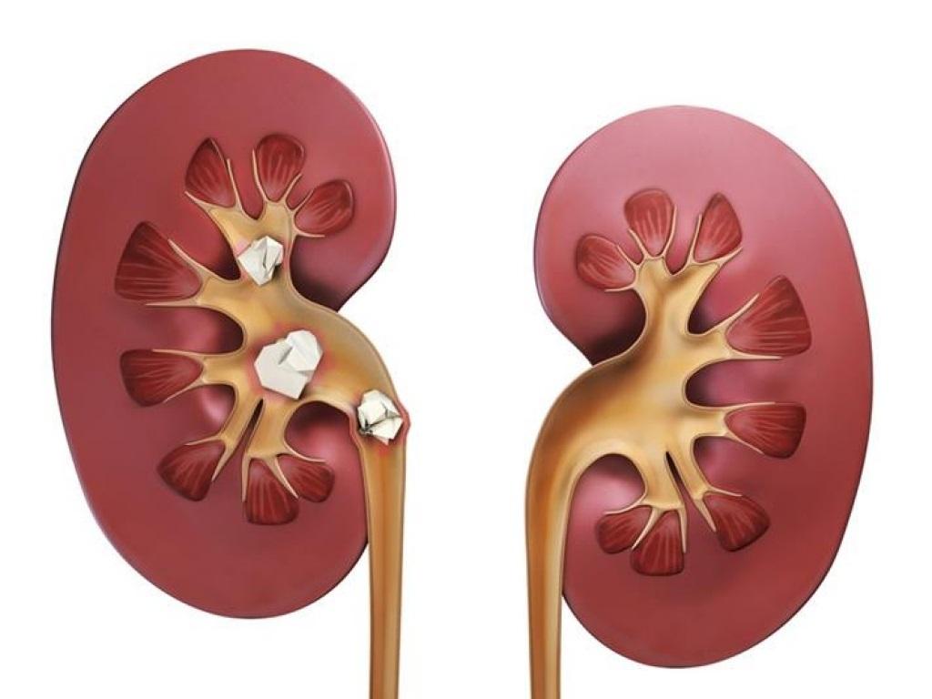 Оксалатурия оксалатные камни в почках: диета и причины