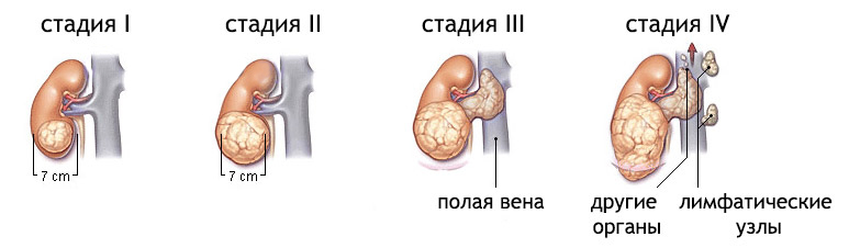 Степени рака