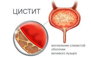 Рези в мочевом пузыре у женщин причины 18