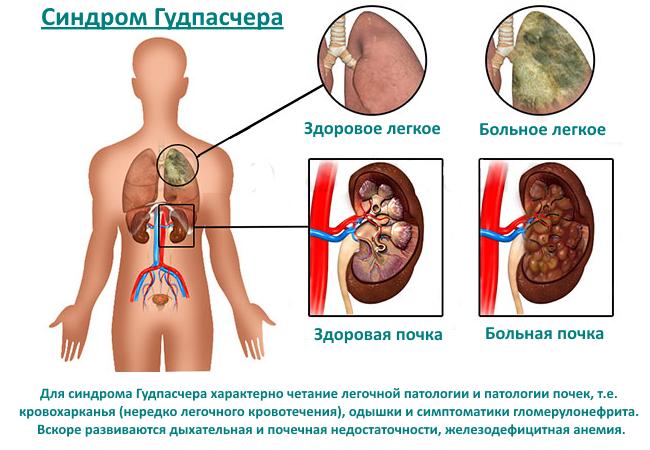 Синдром Гудспачера