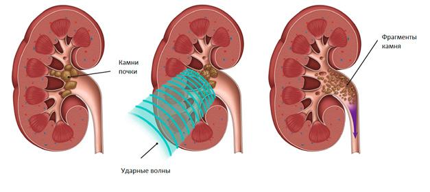 Рентгеноконтрастный конкремент почки 1