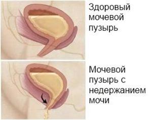 рисунок мочевика