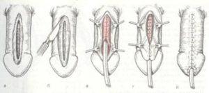 эписпадия (схема операция)