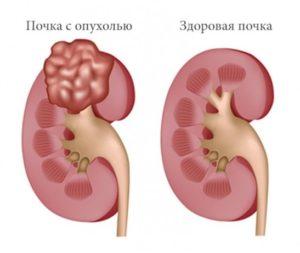 Опухоль почки