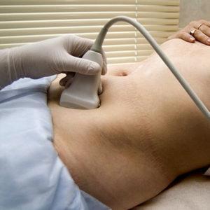 Физиотерапия при гипотонии у детей