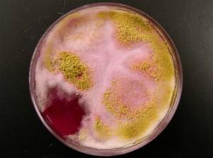 колонии бактерий в моче