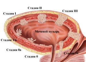 опухоь мочевого пузыря