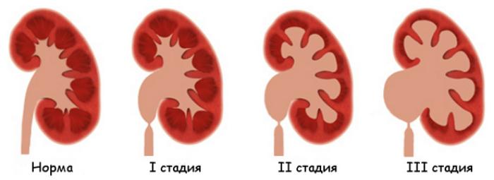 стадии уретерогидронефроза