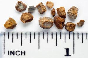 размеры камней