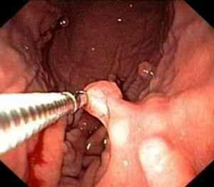 киста в уретре
