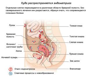 распространение эндометрия