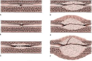 Стриктура (сужение) уретры у мужчин: причины, симптомы и лечение