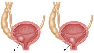 Уретероцеле у женщин что это