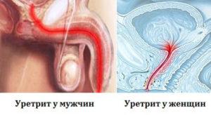 схема уретрита у мужчин и женщин