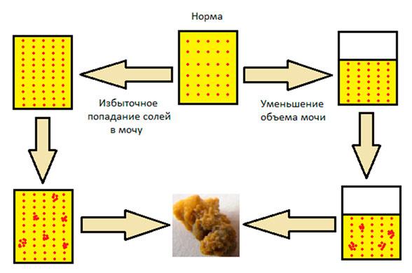схема образования фосфатных камней
