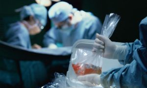 забор органов