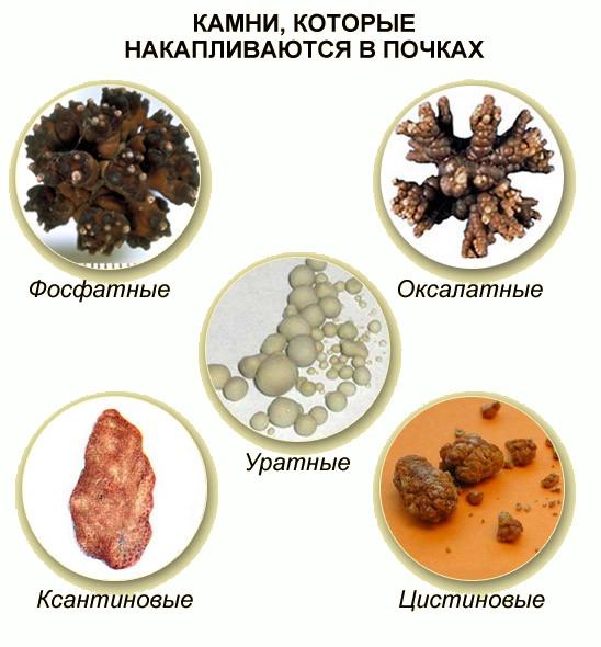 Мочекаменная болезнь лечение растворить камни thumbnail
