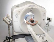 компьютеная томография