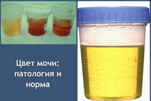 мутная урина
