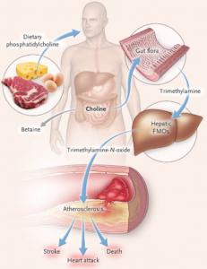 Триметиламинурия