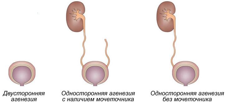 формы агенезии