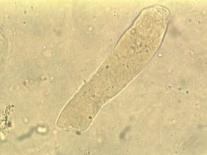 цилиндр в моче под микроскопом